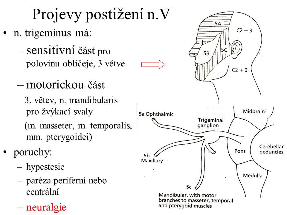 Projevy postižení n.V sensitivní část pro polovinu obličeje, 3 větve