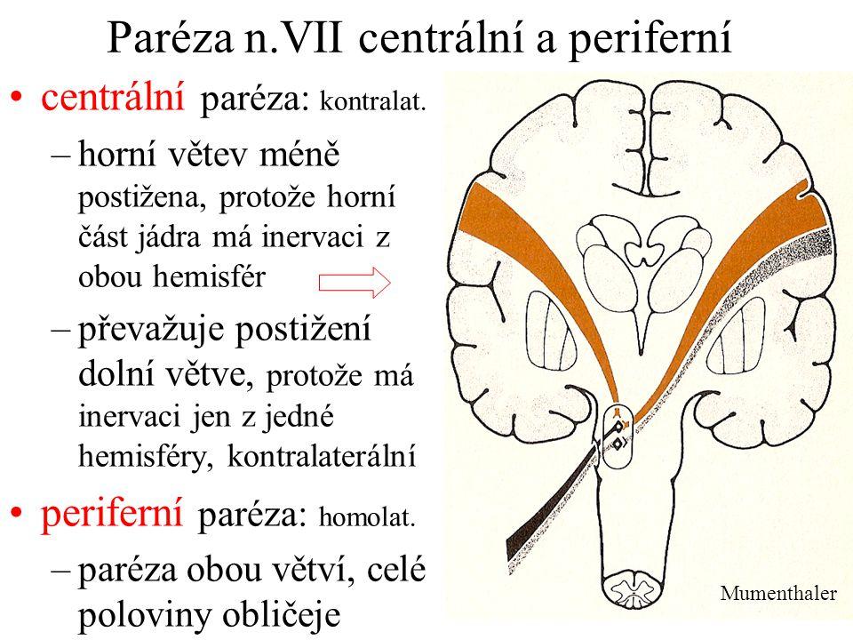 Paréza n.VII centrální a periferní