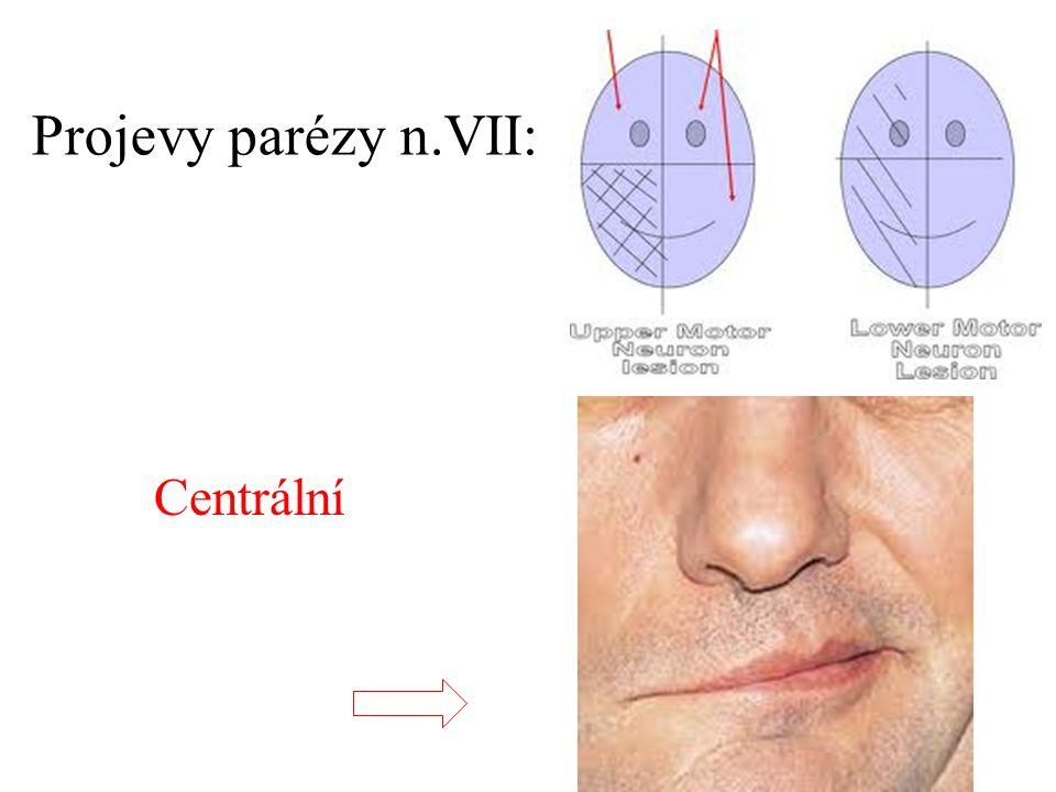 Projevy parézy n.VII: Centrální