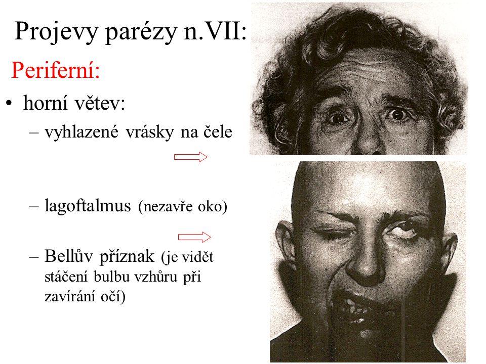 Projevy parézy n.VII: Periferní: horní větev: vyhlazené vrásky na čele