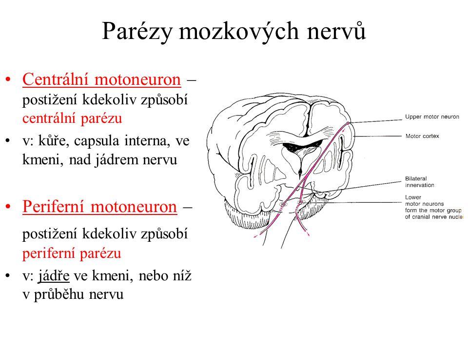 Parézy mozkových nervů