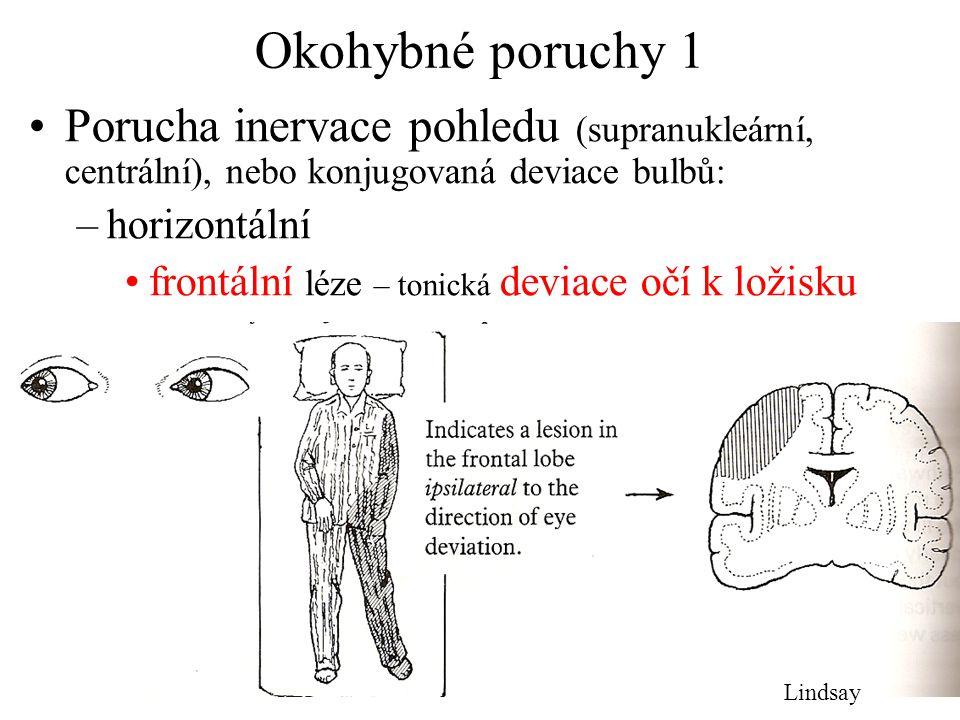 Okohybné poruchy 1 Porucha inervace pohledu (supranukleární, centrální), nebo konjugovaná deviace bulbů: