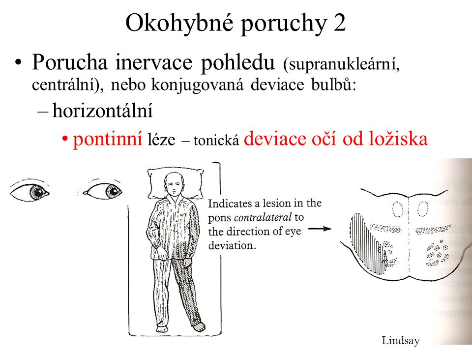 Okohybné poruchy 2 Porucha inervace pohledu (supranukleární, centrální), nebo konjugovaná deviace bulbů: