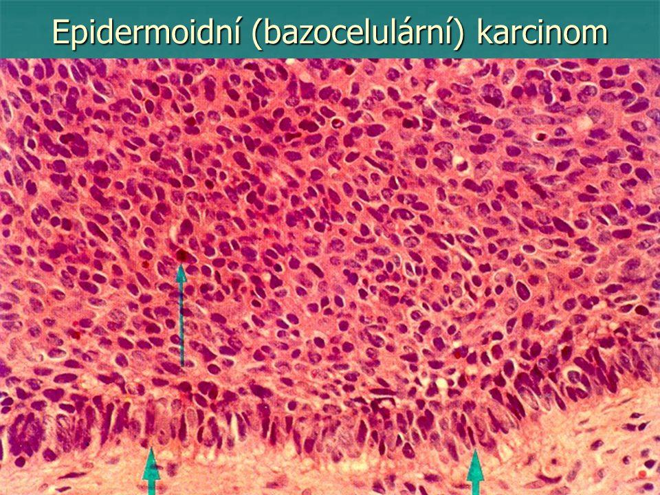 Epidermoidní (bazocelulární) karcinom