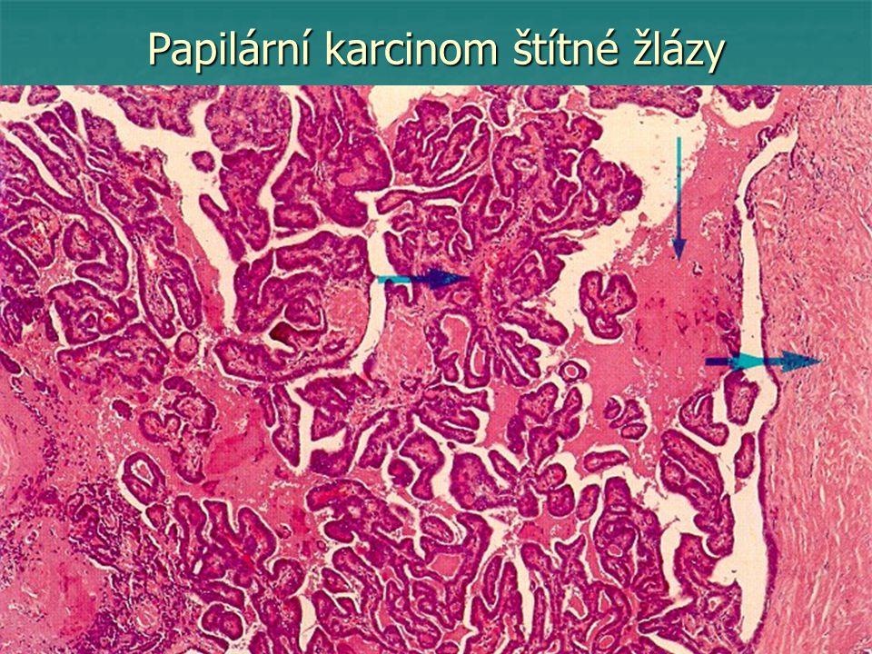 Papilární karcinom štítné žlázy