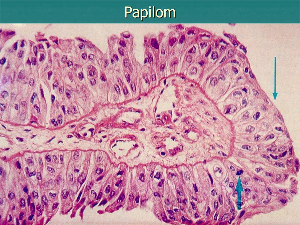 Papilom