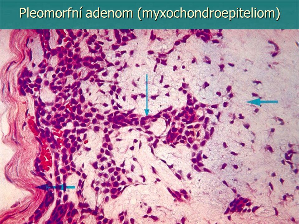 Pleomorfní adenom (myxochondroepiteliom)