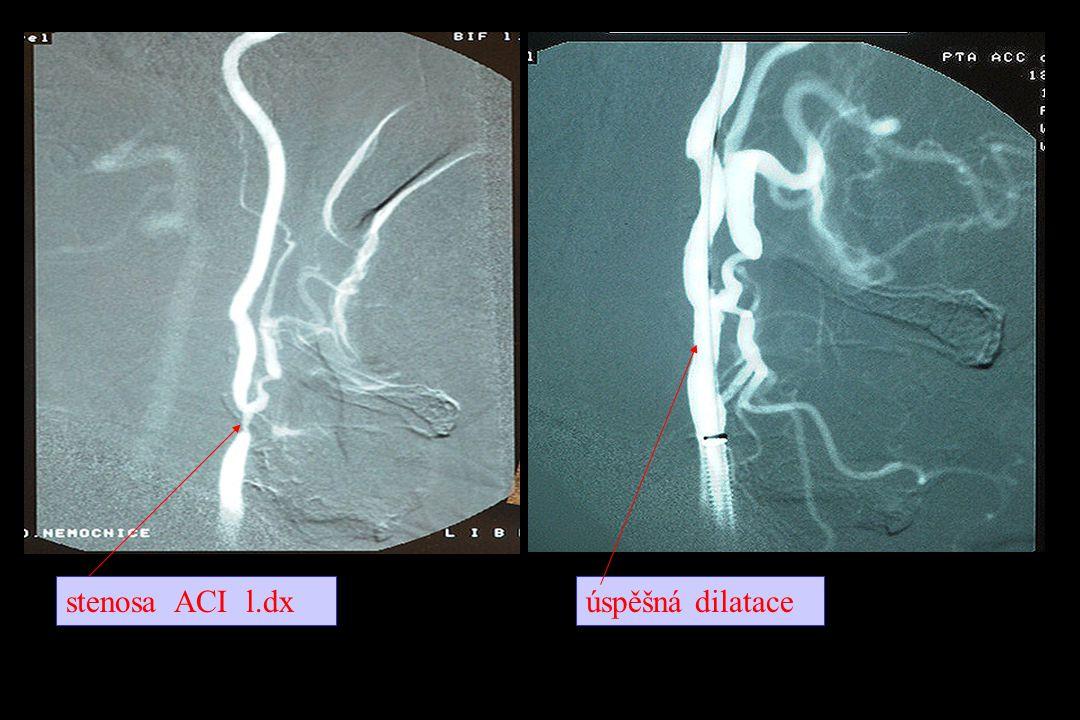 stenosa ACI l.dx úspěšná dilatace