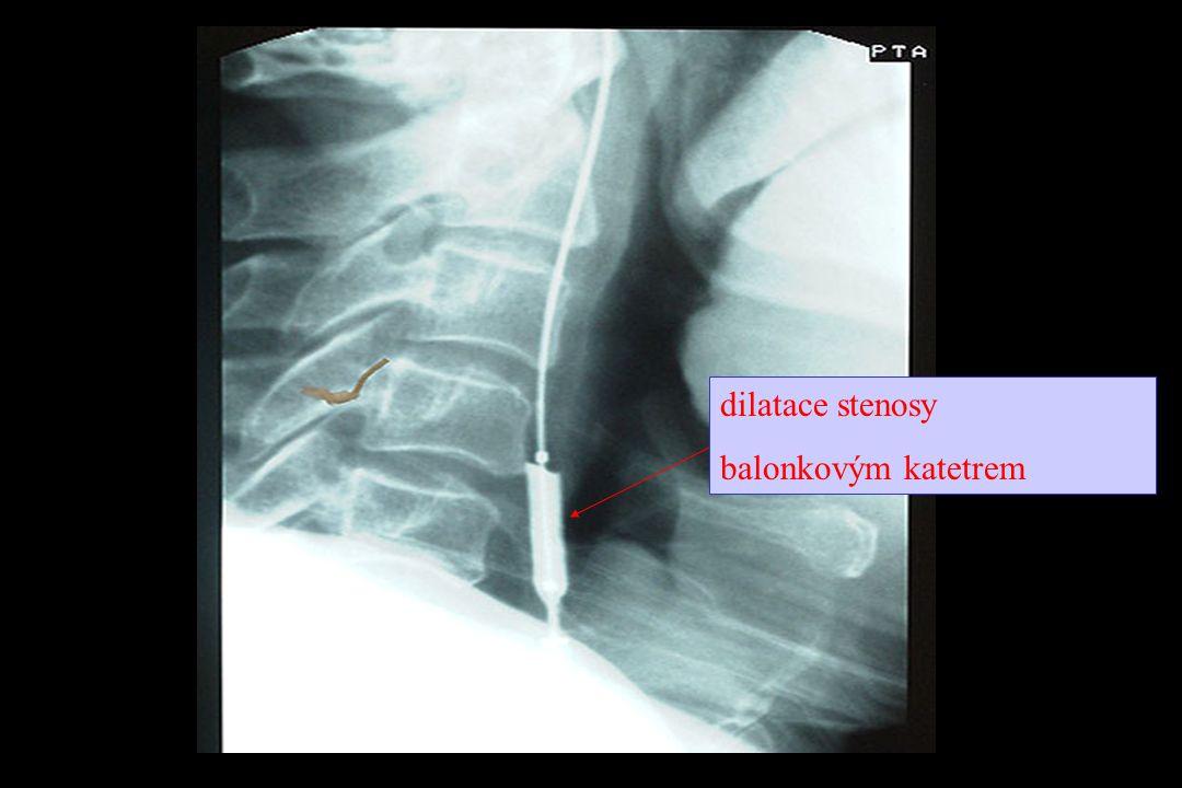 dilatace stenosy balonkovým katetrem