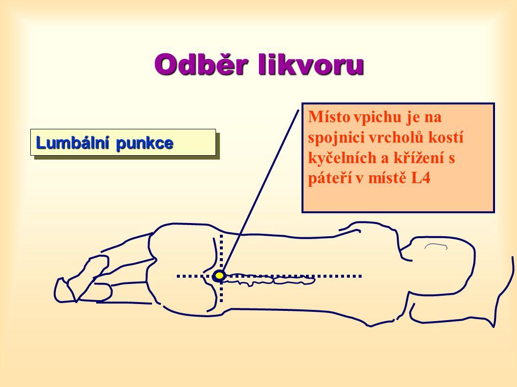 Odběr likvoru Místo vpichu je na spojnici vrcholů kostí kyčelních a křížení s páteří v místě L4.