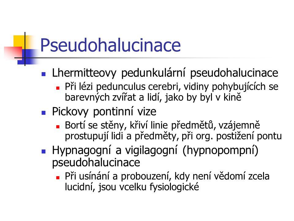 Pseudohalucinace Lhermitteovy pedunkulární pseudohalucinace