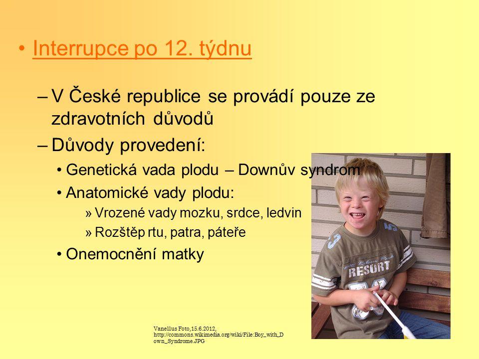 Interrupce po 12. týdnu V České republice se provádí pouze ze zdravotních důvodů. Důvody provedení: