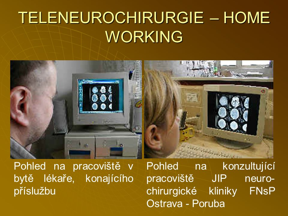 TELENEUROCHIRURGIE – HOME WORKING