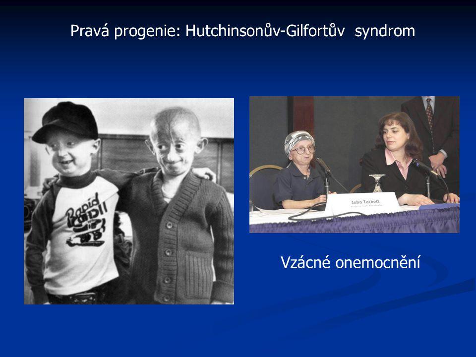 Pravá progenie: Hutchinsonův-Gilfortův syndrom