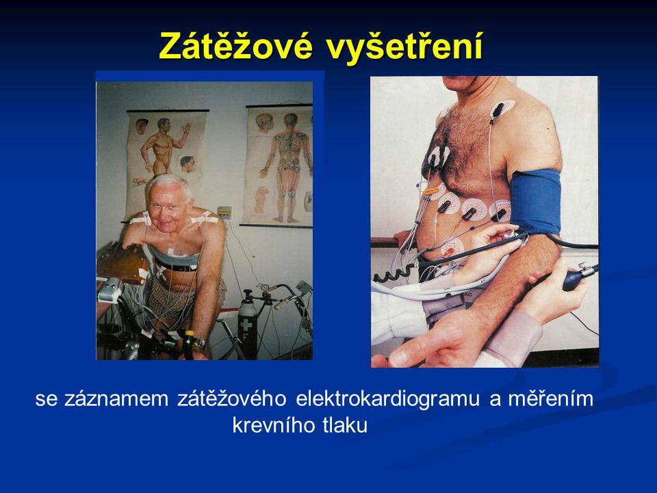 Zátěžové vyšetření se záznamem zátěžového elektrokardiogramu a měřením krevního tlaku