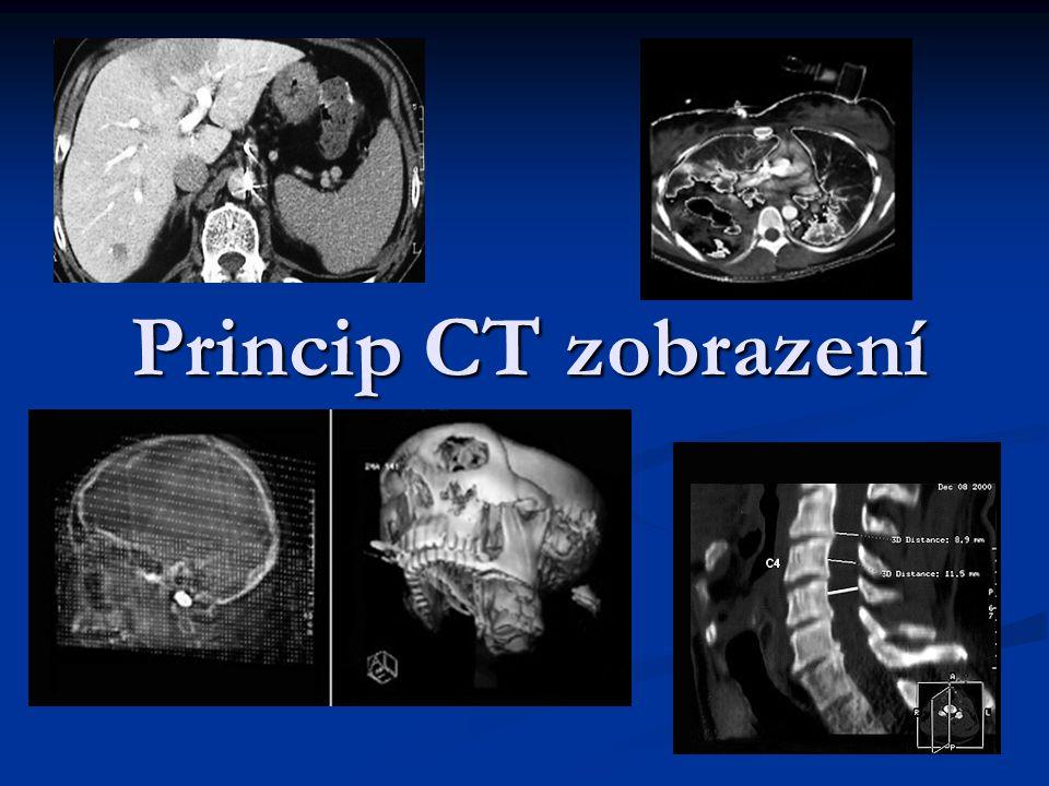 Princip CT zobrazení
