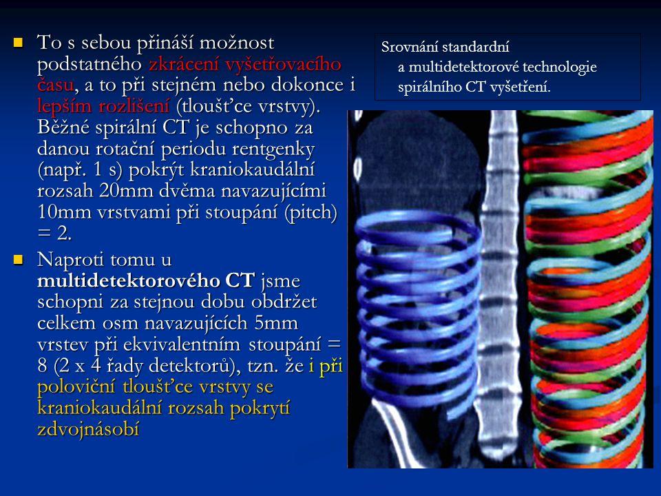 To s sebou přináší možnost podstatného zkrácení vyšetřovacího času, a to při stejném nebo dokonce i lepším rozlišení (tloušťce vrstvy). Běžné spirální CT je schopno za danou rotační periodu rentgenky (např. 1 s) pokrýt kraniokaudální rozsah 20mm dvěma navazujícími 10mm vrstvami při stoupání (pitch) = 2.