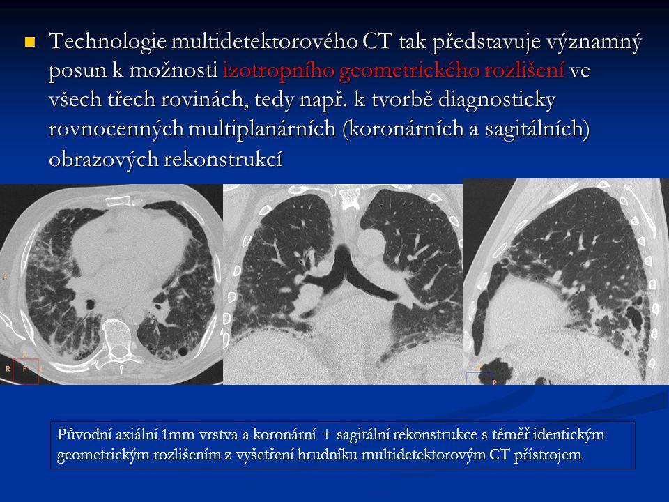 Technologie multidetektorového CT tak představuje významný posun k možnosti izotropního geometrického rozlišení ve všech třech rovinách, tedy např. k tvorbě diagnosticky rovnocenných multiplanárních (koronárních a sagitálních) obrazových rekonstrukcí