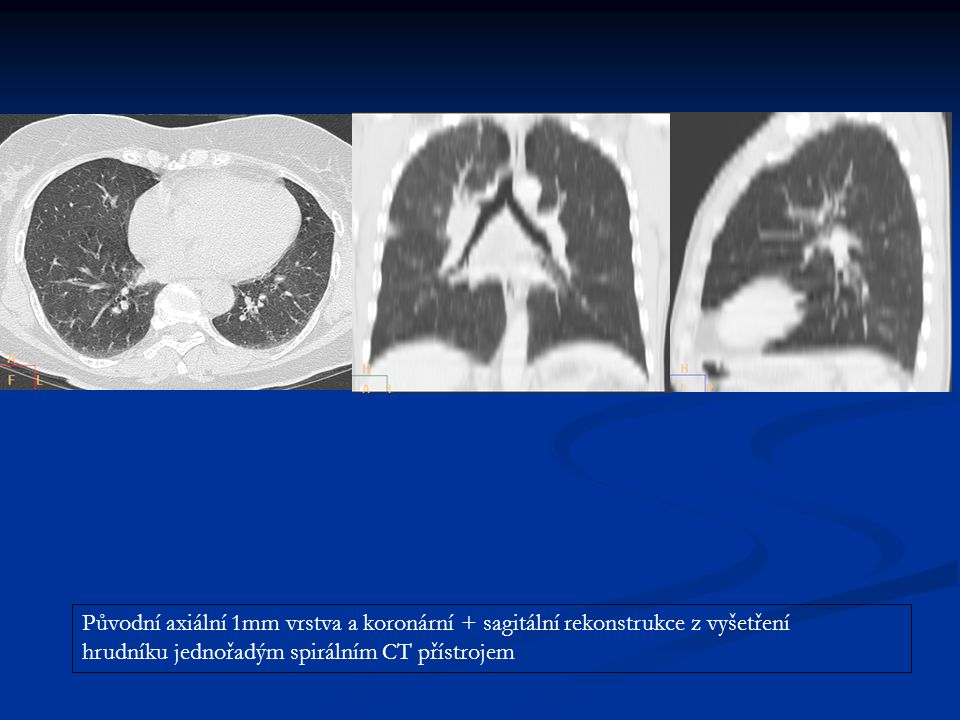 Původní axiální 1mm vrstva a koronární + sagitální rekonstrukce z vyšetření hrudníku jednořadým spirálním CT přístrojem