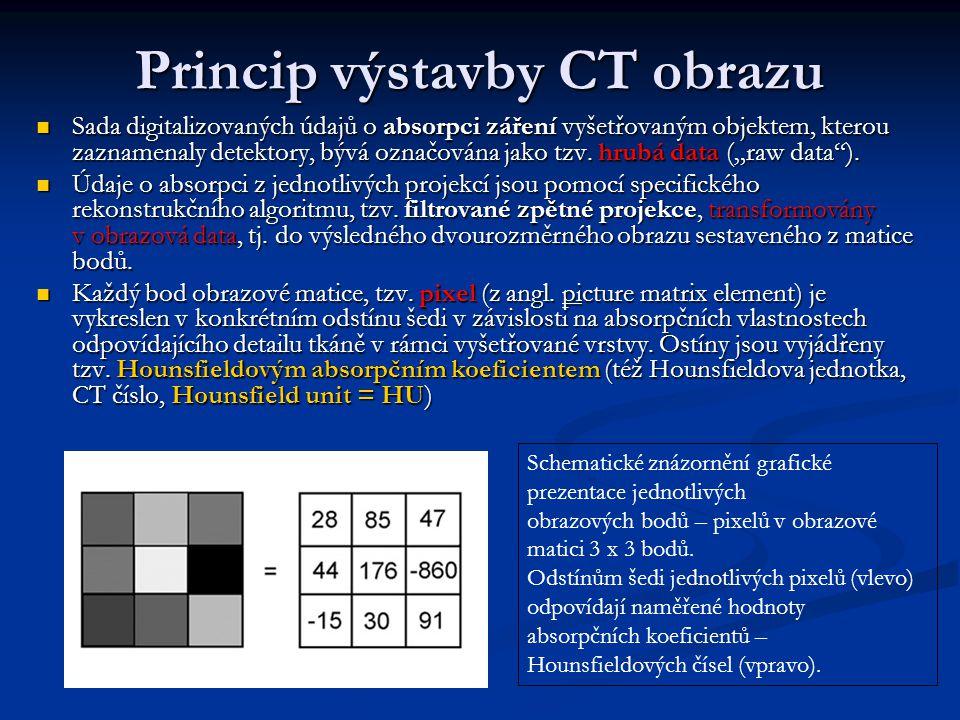 Princip výstavby CT obrazu