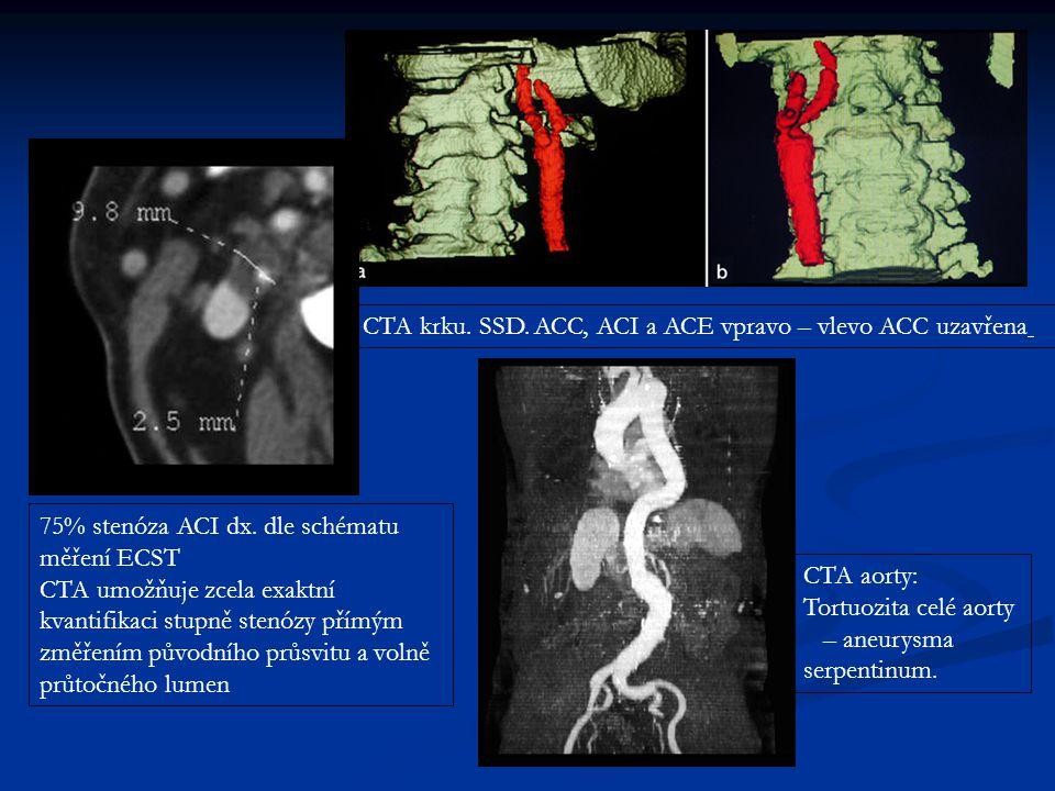 CTA krku. SSD. ACC, ACI a ACE vpravo – vlevo ACC uzavřena