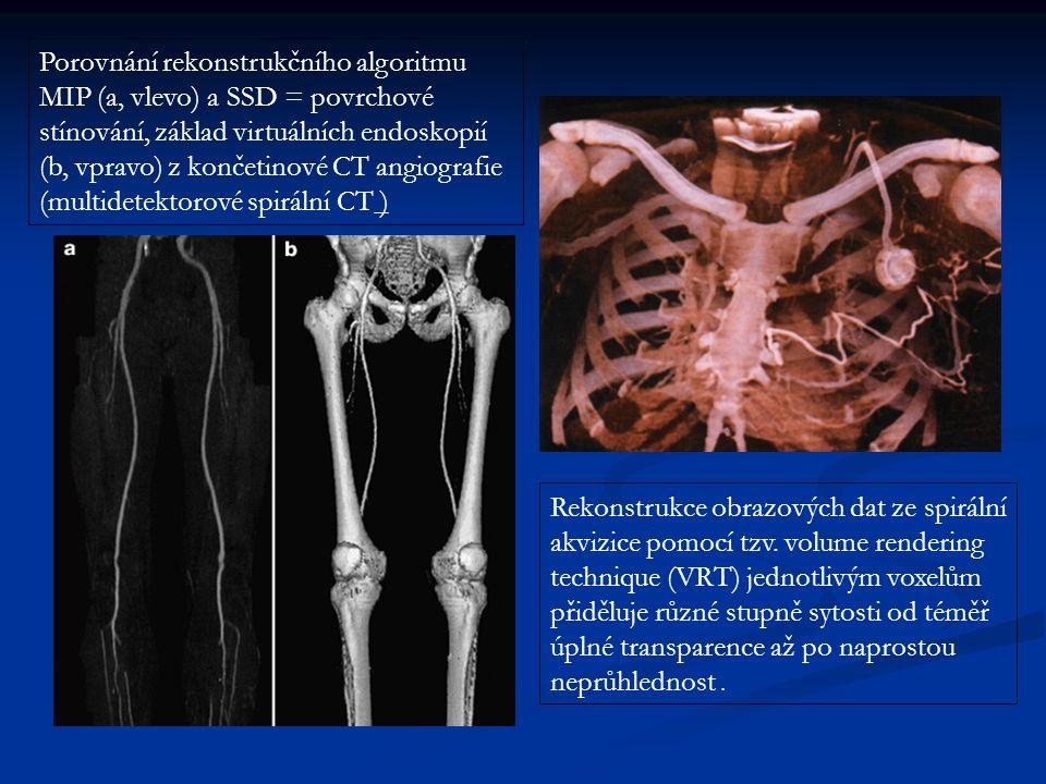 Porovnání rekonstrukčního algoritmu MIP (a, vlevo) a SSD = povrchové stínování, základ virtuálních endoskopií (b, vpravo) z končetinové CT angiografie (multidetektorové spirální CT )