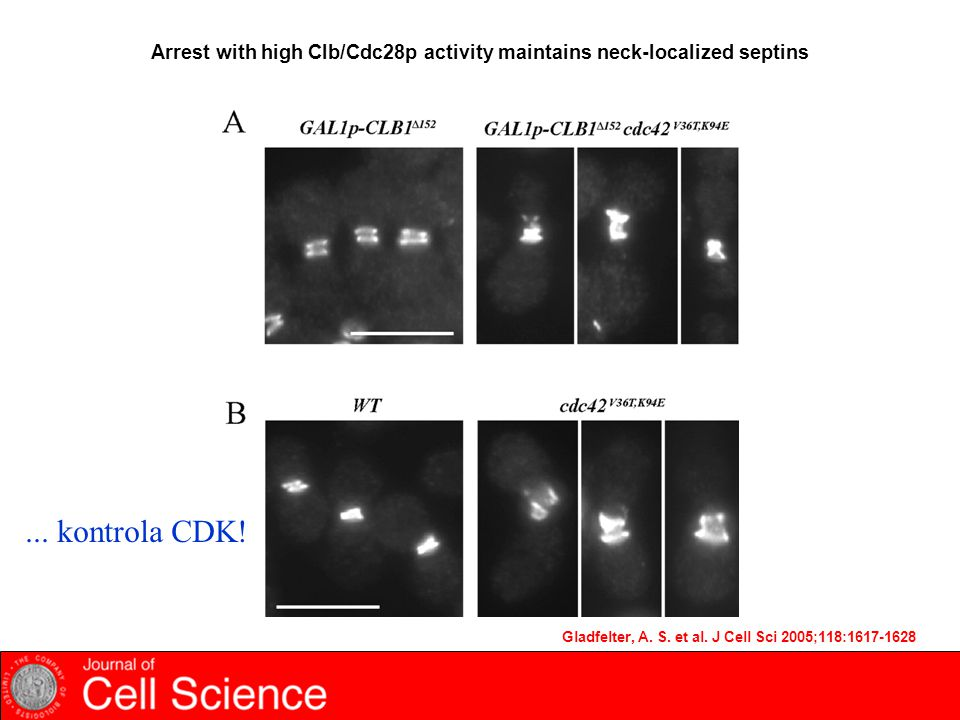 Arrest with high Clb/Cdc28p activity maintains neck-localized septins