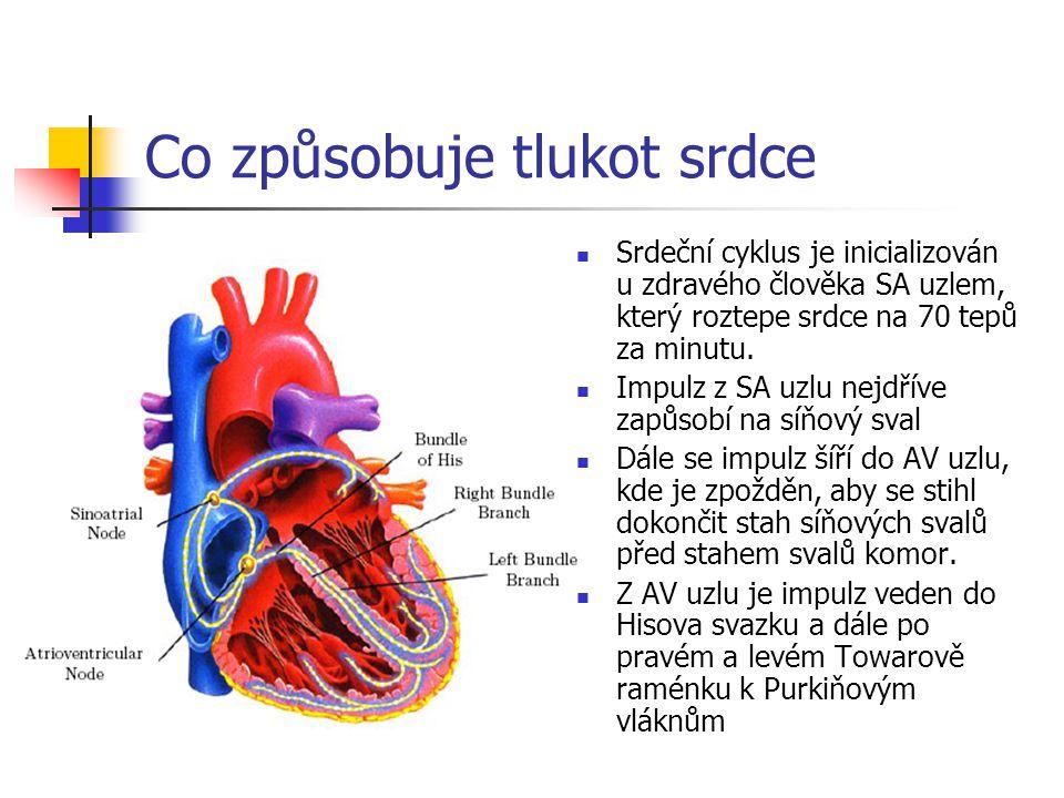 Co způsobuje tlukot srdce