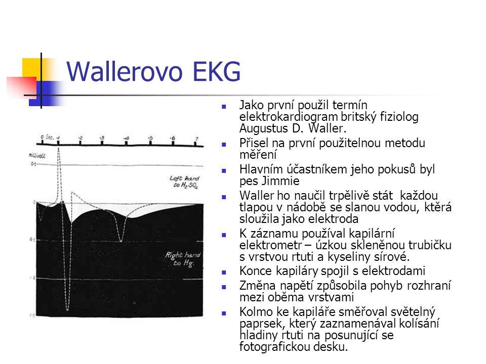 Wallerovo EKG Jako první použil termín elektrokardiogram britský fiziolog Augustus D. Waller. Přisel na první použitelnou metodu měření.