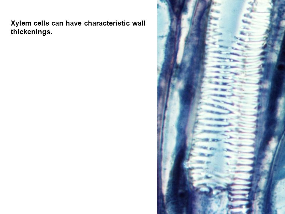 Xylem cells can have characteristic wall thickenings.