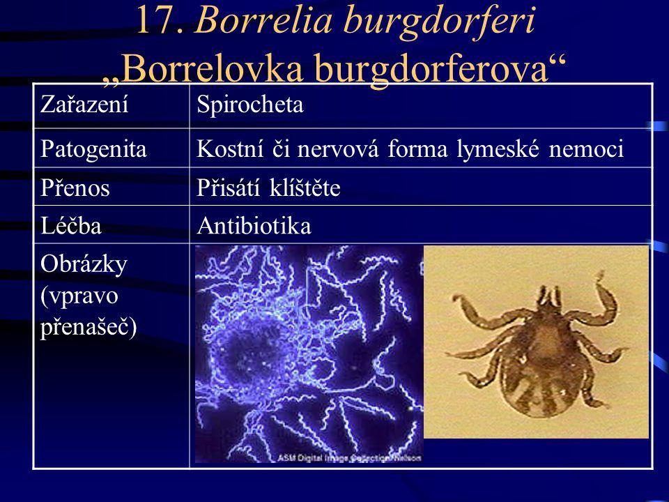"17. Borrelia burgdorferi ""Borrelovka burgdorferova"