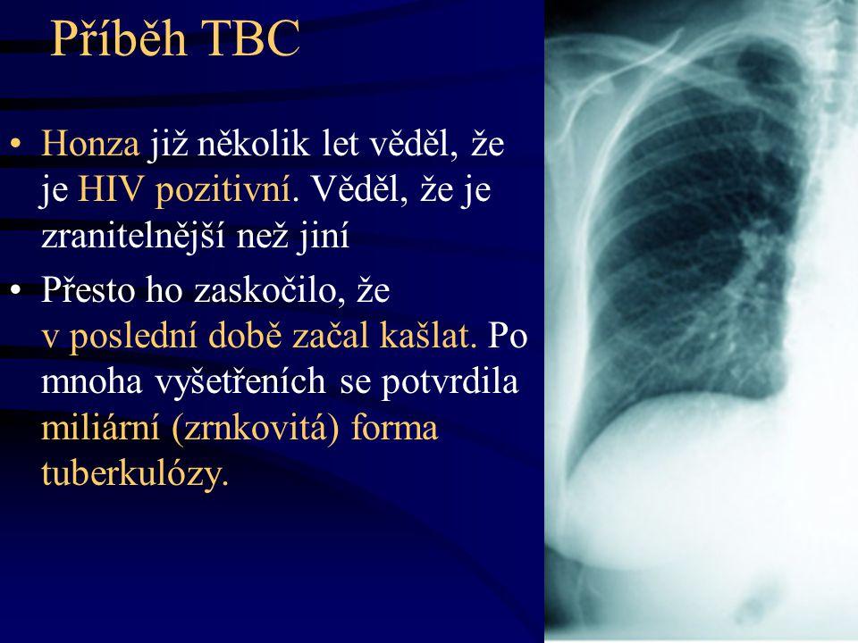 Příběh TBC Honza již několik let věděl, že je HIV pozitivní. Věděl, že je zranitelnější než jiní.