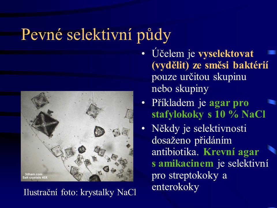 Pevné selektivní půdy Účelem je vyselektovat (vydělit) ze směsi baktérií pouze určitou skupinu nebo skupiny.