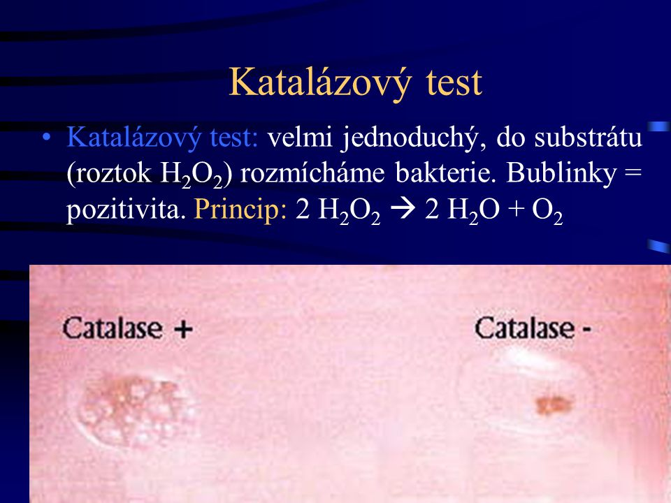 Katalázový test