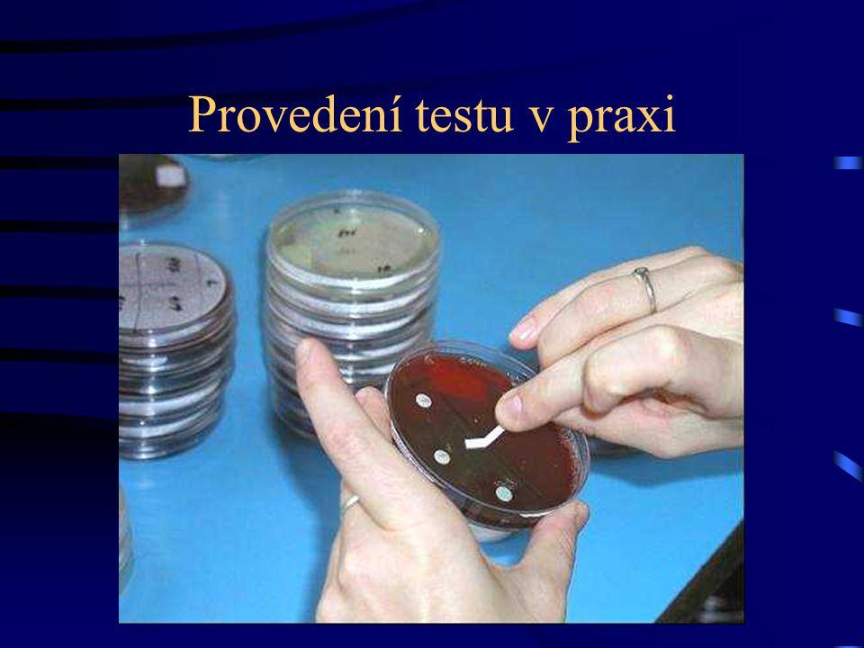 Provedení testu v praxi