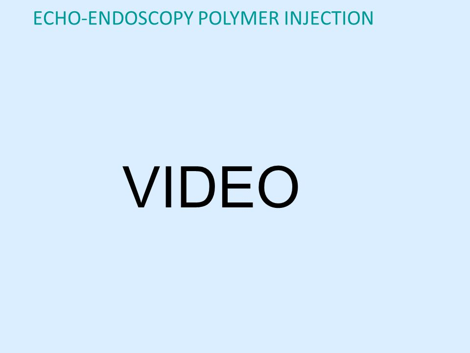ECHO-ENDOSCOPY POLYMER INJECTION