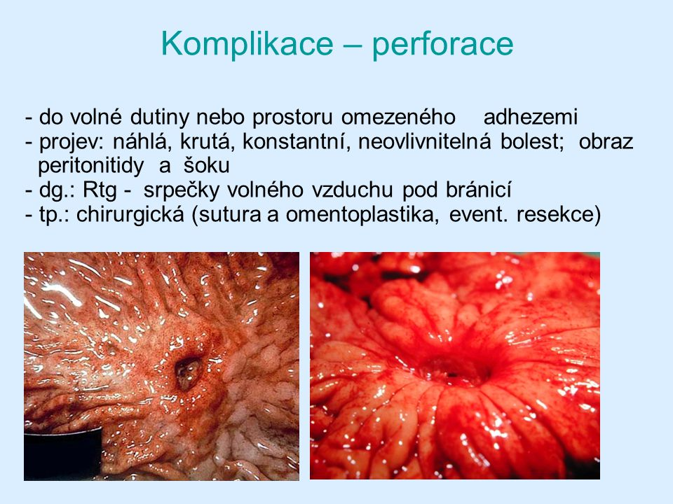 Komplikace – perforace