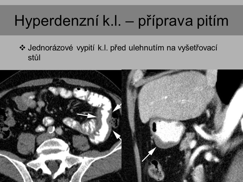 Hyperdenzní k.l. – příprava pitím