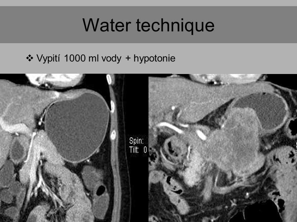 Water technique Vypití 1000 ml vody + hypotonie