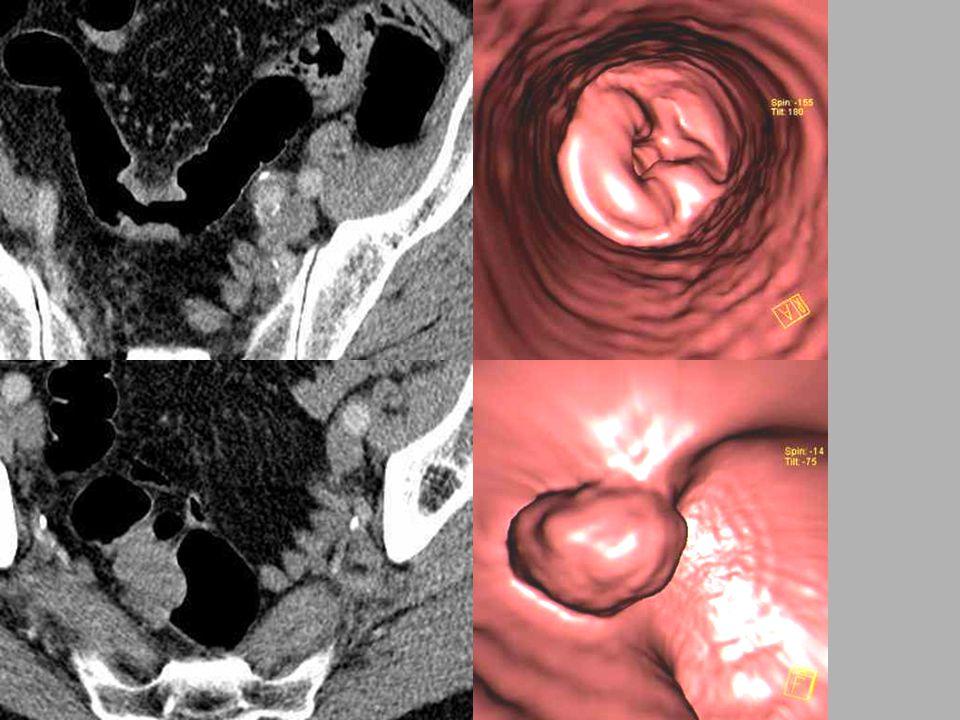 Cirkulární adenoCA Polypoidní adenoCA