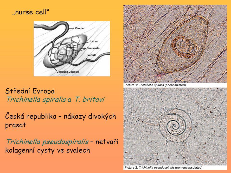 """""""nurse cell Střední Evropa. Trichinella spiralis a T. britovi. Česká republika – nákazy divokých prasat."""