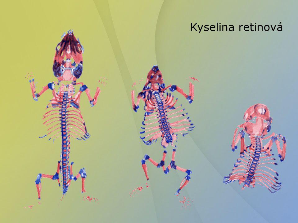 Kyselina retinová