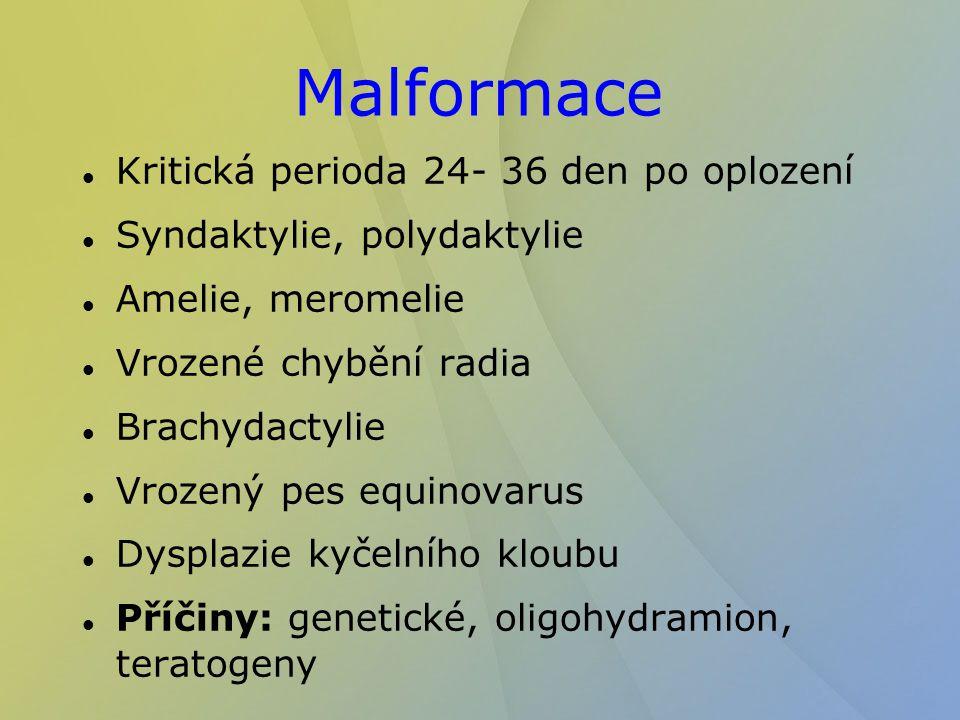 Malformace Kritická perioda 24- 36 den po oplození