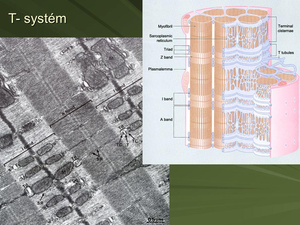 T- systém