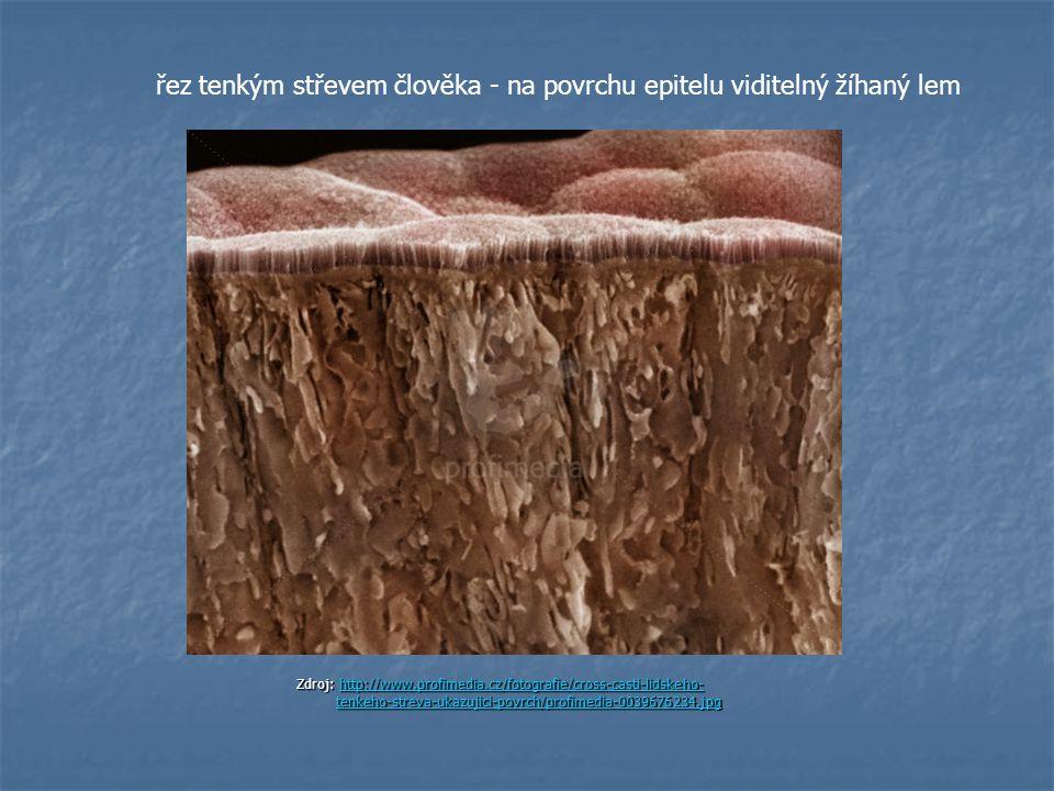 řez tenkým střevem člověka - na povrchu epitelu viditelný žíhaný lem