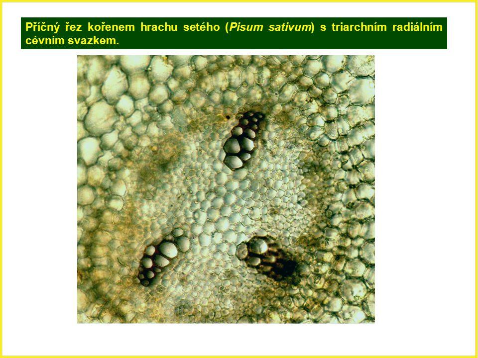 Příčný řez kořenem hrachu setého (Pisum sativum) s triarchním radiálním cévním svazkem.