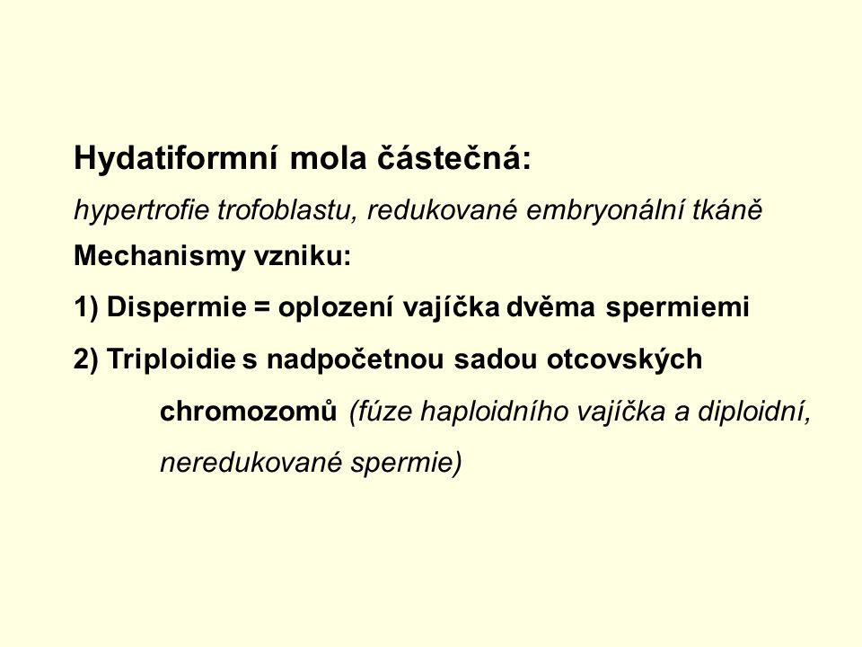 Hydatiformní mola částečná: