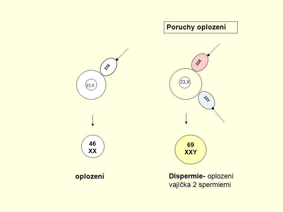 Dispermie- oplození vajíčka 2 spermiemi