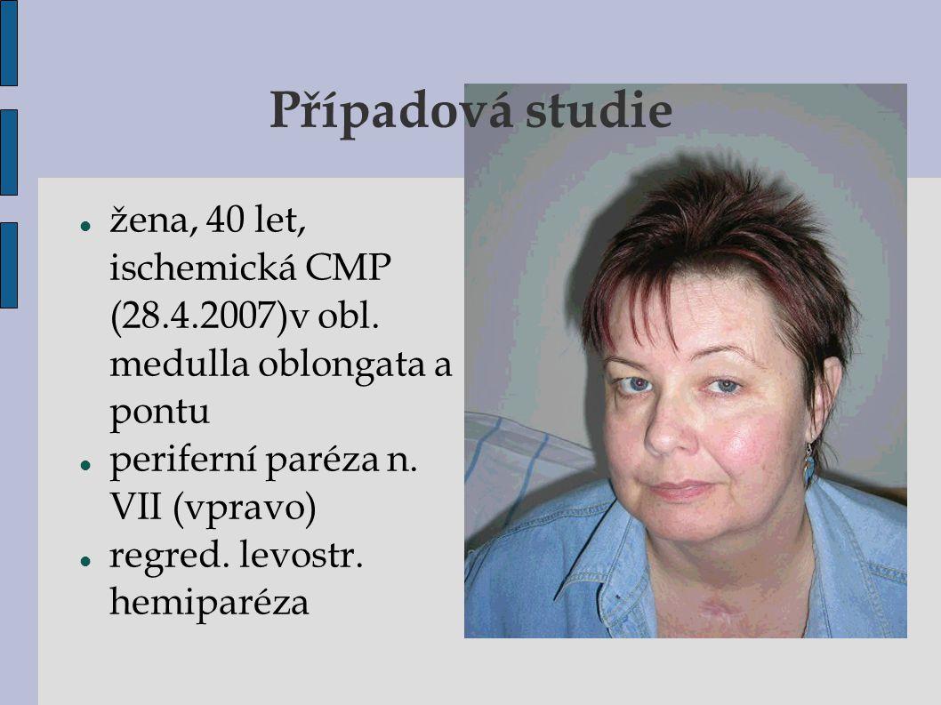 Případová studie žena, 40 let, ischemická CMP (28.4.2007)v obl. medulla oblongata a pontu. periferní paréza n. VII (vpravo)