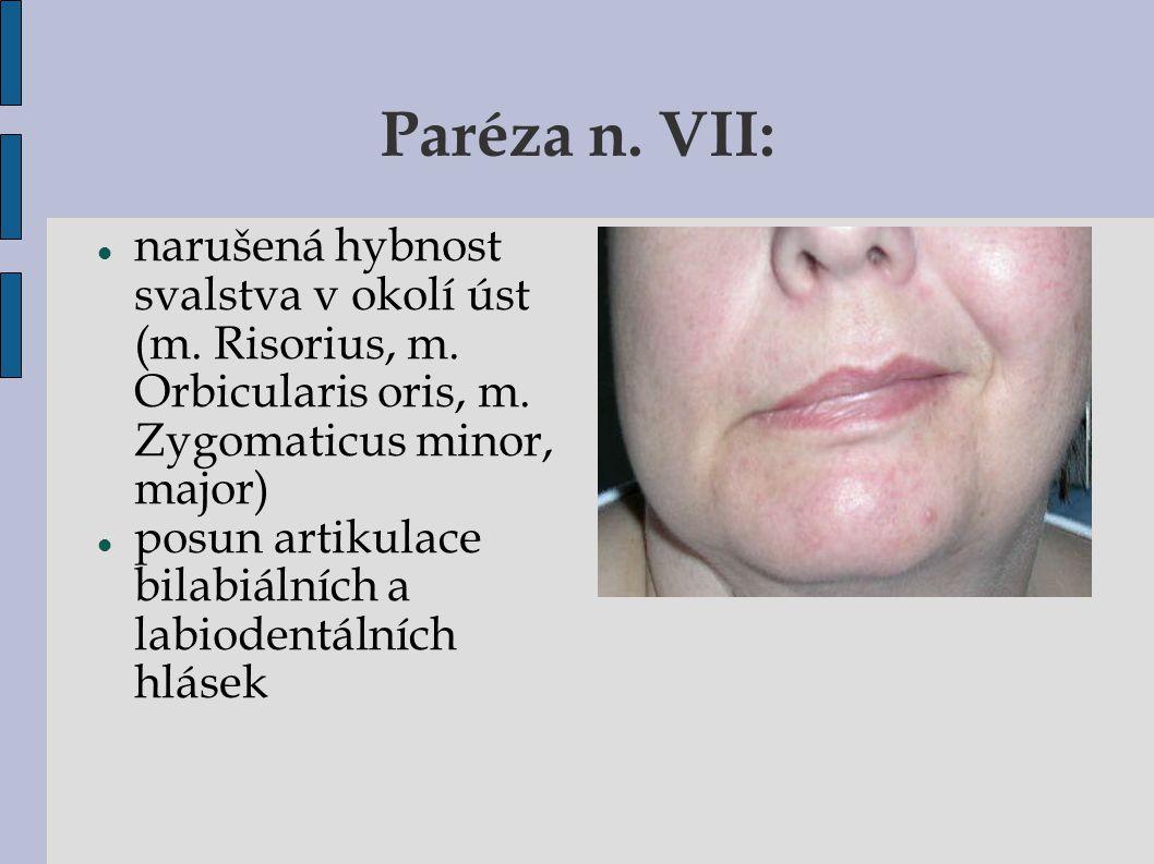 Paréza n. VII: narušená hybnost svalstva v okolí úst (m. Risorius, m. Orbicularis oris, m. Zygomaticus minor, major)